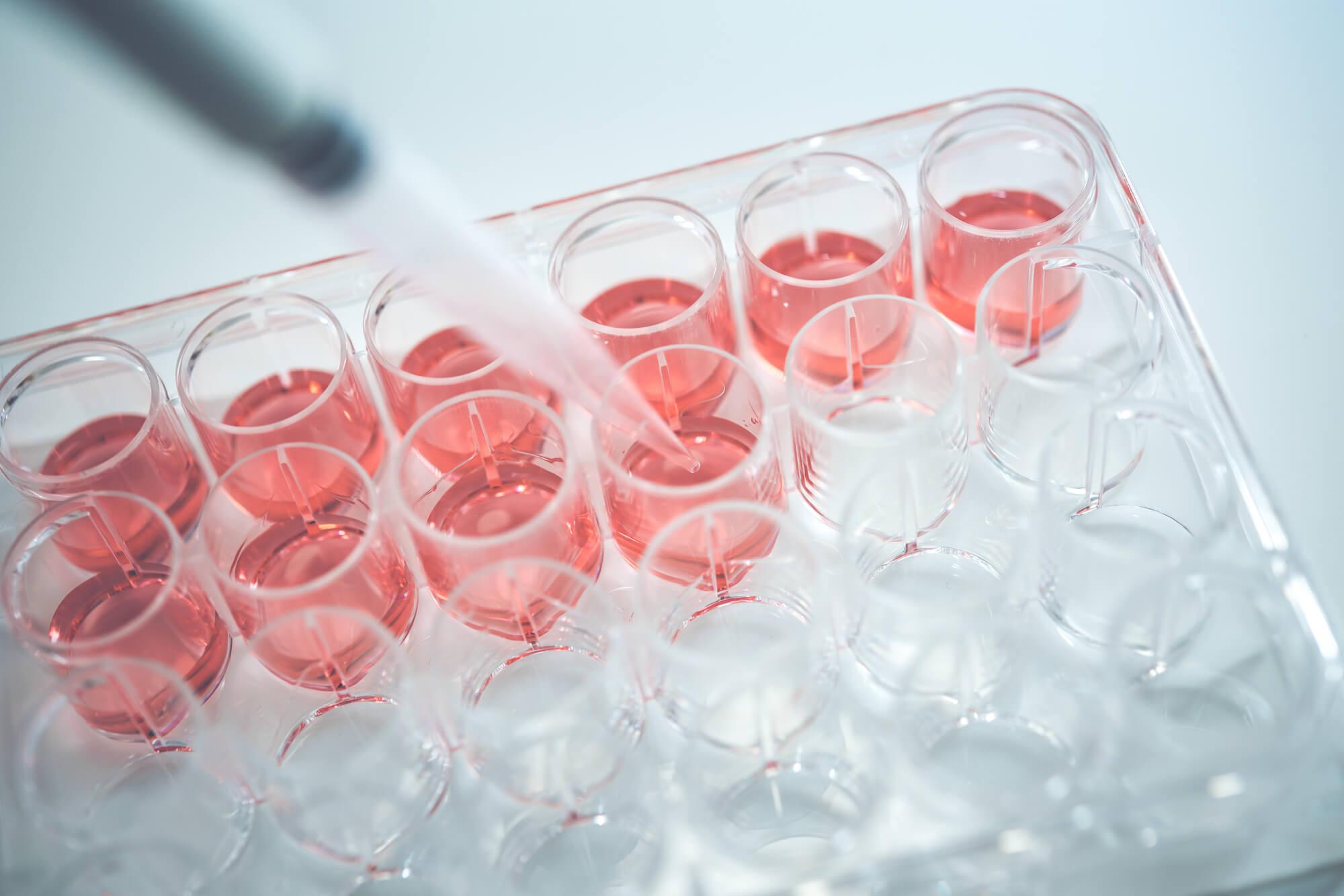 ポリジェニックリスクスコアで薬剤性肝障害を予測「新薬開発の成功確率高める可能性」